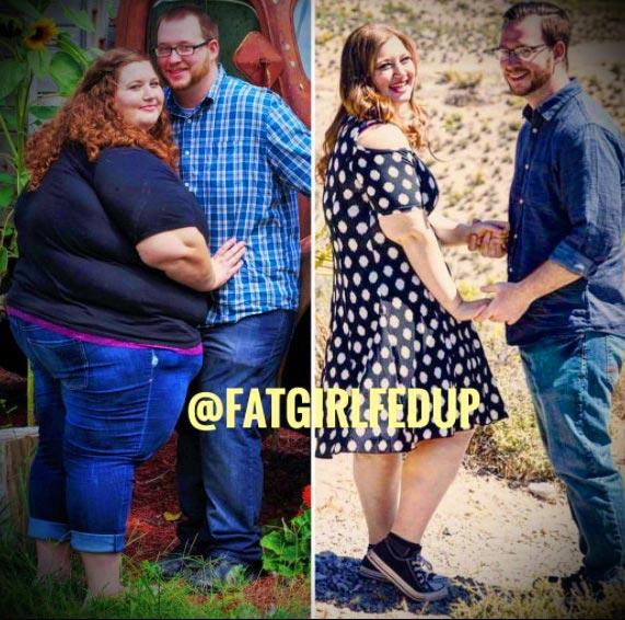 похудение на 100 кг до и после