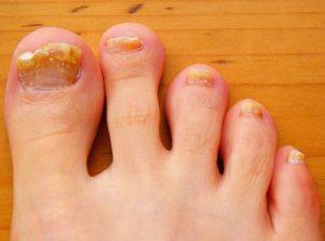 Лечение грибка ногтей йодом